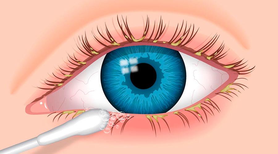 Sintomas - Blefarite | Dr. Marcelo Vilar