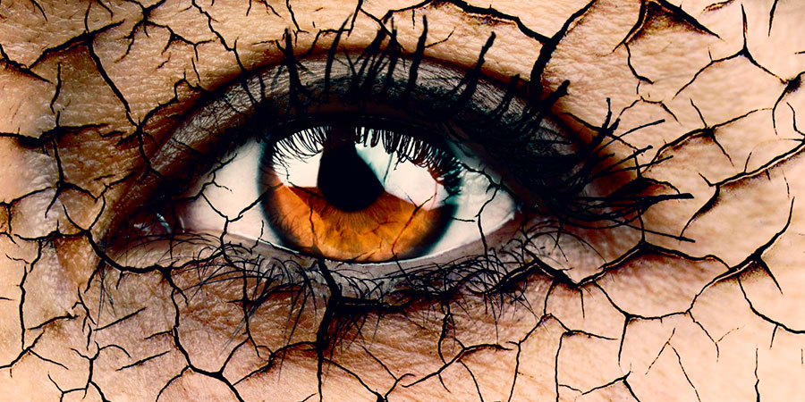 Desitratação - Olho Seco | Dr. Marcelo Vilar