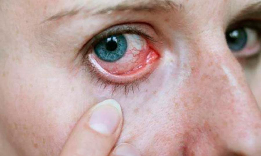 Sintoma - Olho Seco | Dr. Marcelo Vilar