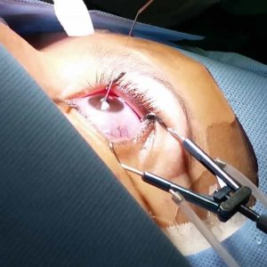 Cirurgia Refrativa a laser | Dr. Marcelo Vilar