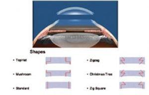 Pós-operatório recente de transplante de córnea | Dr. Marcelo Vilar