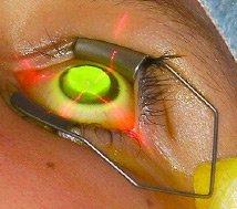 Crosslinking - procedimento | Dr. Marcelo Vilar