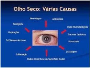 FATORES QUE PODEM CONTRIBUIR COM O DESENVOLVIMENTO DE OLHO SECO | Dr. Marcelo Vilar