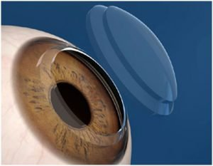 Transplante de Córnea a Laser | Dr. Marcelo Vilar