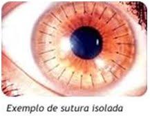 Exemplo de sutura isolada   Dr. Marcelo Vilar