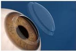 Exemplo de sutura isolada | Dr. Marcelo Vilar