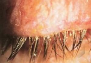 Sintomas Blefarite | Dr. Marcelo Vilar