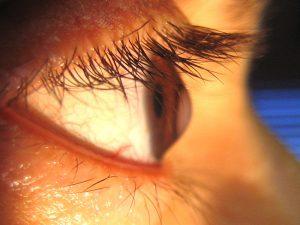 Ceratocone - olho | Dr. Marcelo Vilar