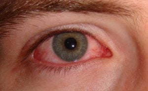 Sintomas conjuntivite | Dr. Marcelo Vilar