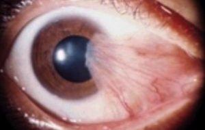 Sintomas Pterigio | Dr. Marcelo Vilar