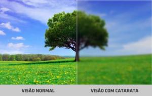 Sintomas Catarata - visão   Dr. Marcelo Vilar