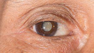 Catarata olho | Dr. Marcelo Vilar
