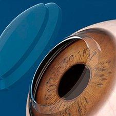 Cirurgias e transplante de córneas   Dr. Marcelo Vilar