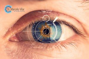 Cirurgia a laser VS Cirurgia personalizada: entenda a diferença   Dr. Marcelo Vilar