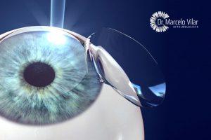 Cirurgias regrativas como funcionam?   Dr. Marcelo Vilar