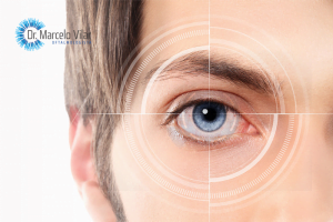 Tudo que você precisa saber sobre cirurgia a laser | Dr. Marcelo Vilar