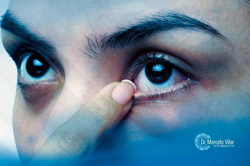 Ceratocone: como reconhecer os primeiros sintomas
