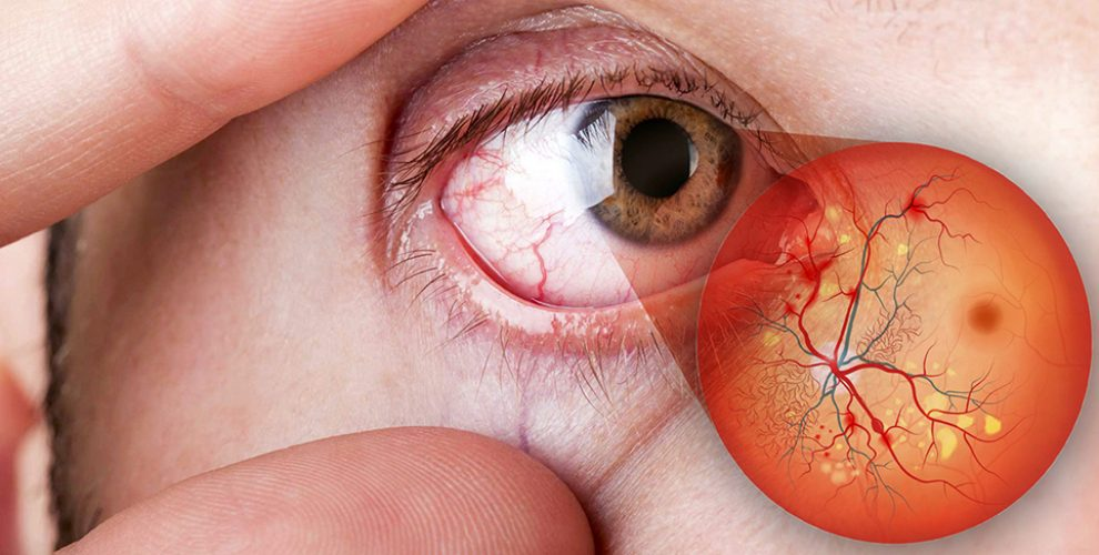 Doenças oculares diabetes | Dr. Marcelo Vilar