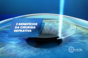 3 benefícios da cirurgia refrativa   Marcelo Vilar