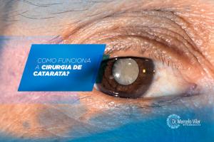 Como funciona a cirurgia de catarata? | Marcelo Vilar
