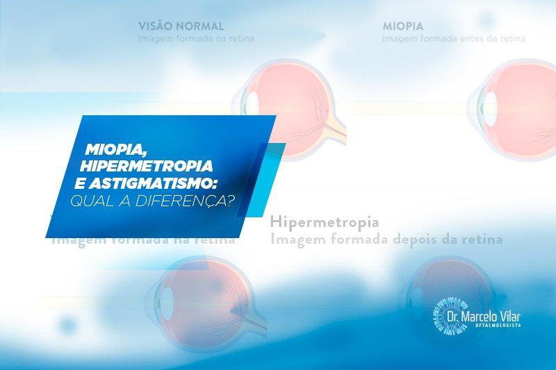 Miopia, hipermetropia e astigmatismo: qual a diferença?