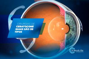 Cirurgias de ceratocone: quais são os tipos   Marcelo Vilar