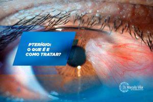 Pterígio: o que é e como tratar? | Marcelo Vilar
