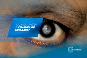 Quando fazer a cirurgia de catarata? | Marcelo Vilar