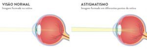 Astigmatismo - Imagem 3 | Marcelo Vilar