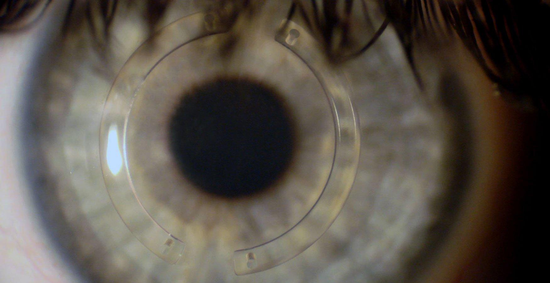 Cirurgias de ceratocone: quais são os tipos - Imagem 2 | Marcelo Vilar