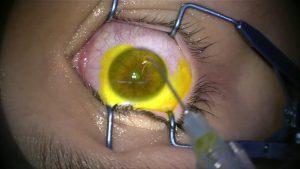Cirurgias de ceratocone: quais são os tipos - Imagem 1 | Marcelo Vilar