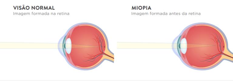 Miopia - Imagem 1 | Marcelo Vilar
